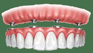 Screw Retained Dentures